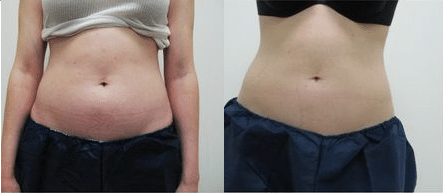 Coolsculpting beforeafter 1