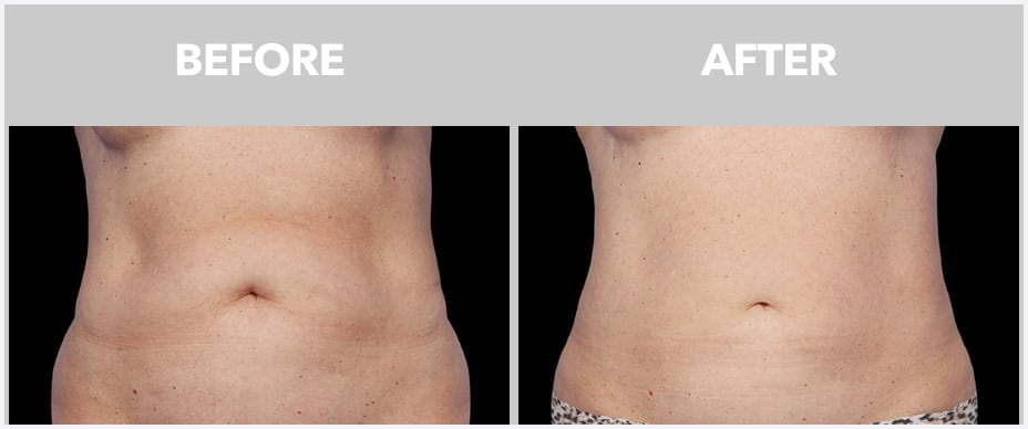 image of before and after coolsculpting at Peace.Love.Med.