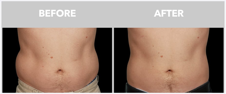 a man's stomach before and after coolsculpting at peace.love.med.