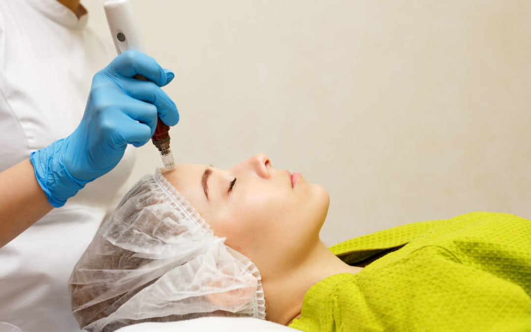 Microneedling: The New Procedure on the Block