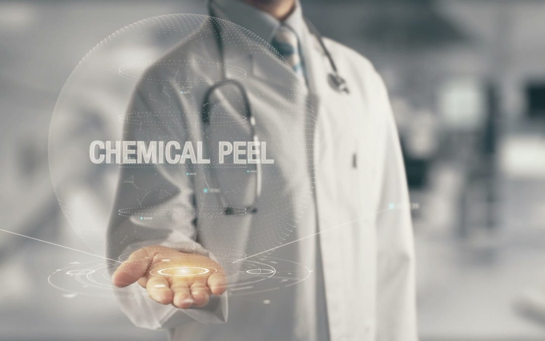 Chemical Peel- What to Expect and what to Do After.