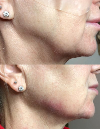 chin_augmentation_1