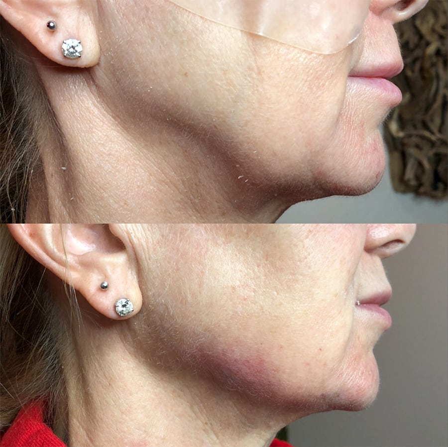 Before and after photos from a chin augmentation procedure on an old woman at Peace.Love.Med.