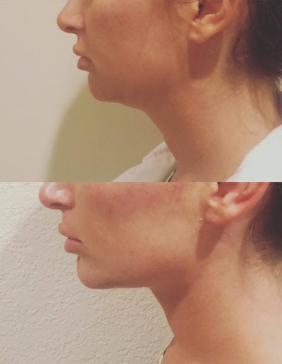 chin_augmentation_2